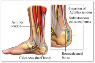 Achilles tendon / Foot pain